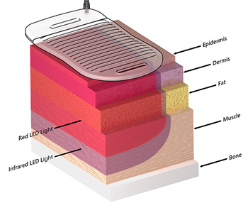 laser and skin layers