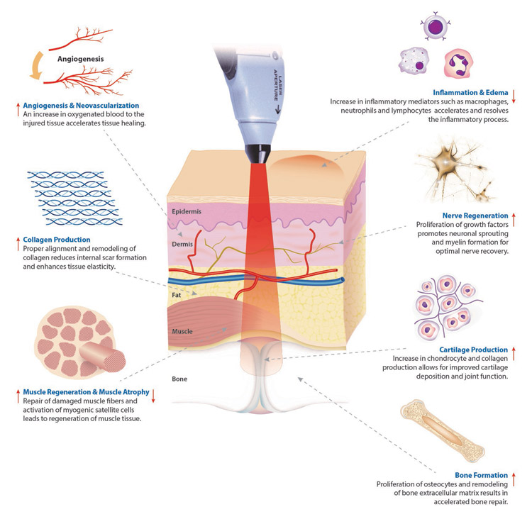 Photobiomodulation Laser Therapy